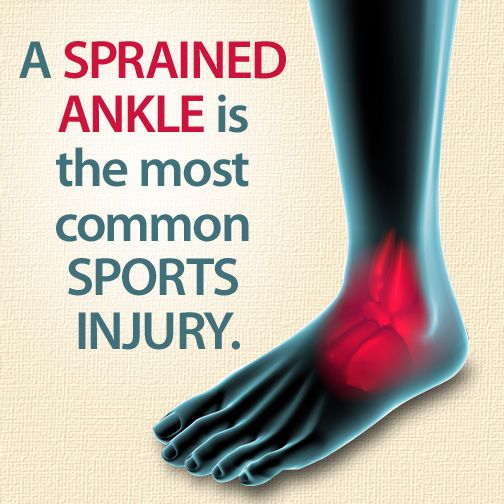 Did you know that a sprained ankle is the most common sports injury?
