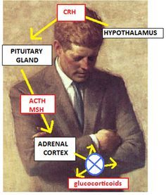 President Kennedy's Addison's disease, which came to light only after his election in 1960, was most likely caused by a rare autoimmune disease, according to a Navy doctor who reviewed …