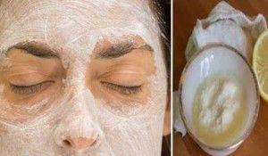 Aplica esta mascarilla de bicarbonato de sodio y limón en su cara y algo asombroso pasará!! Yo lo estoy tratando