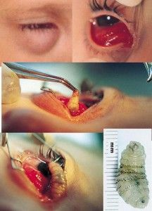 FLESH EATING BOTFLY: Are YOU At RISK?