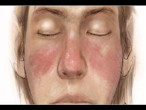 ciri penyakit lupus, tanda penyakit lupus, Systemic lupus erythematosus (SLE) atau yang biasa yang dikunal dengan lupus adalah penyakit yang menyerang sistem...