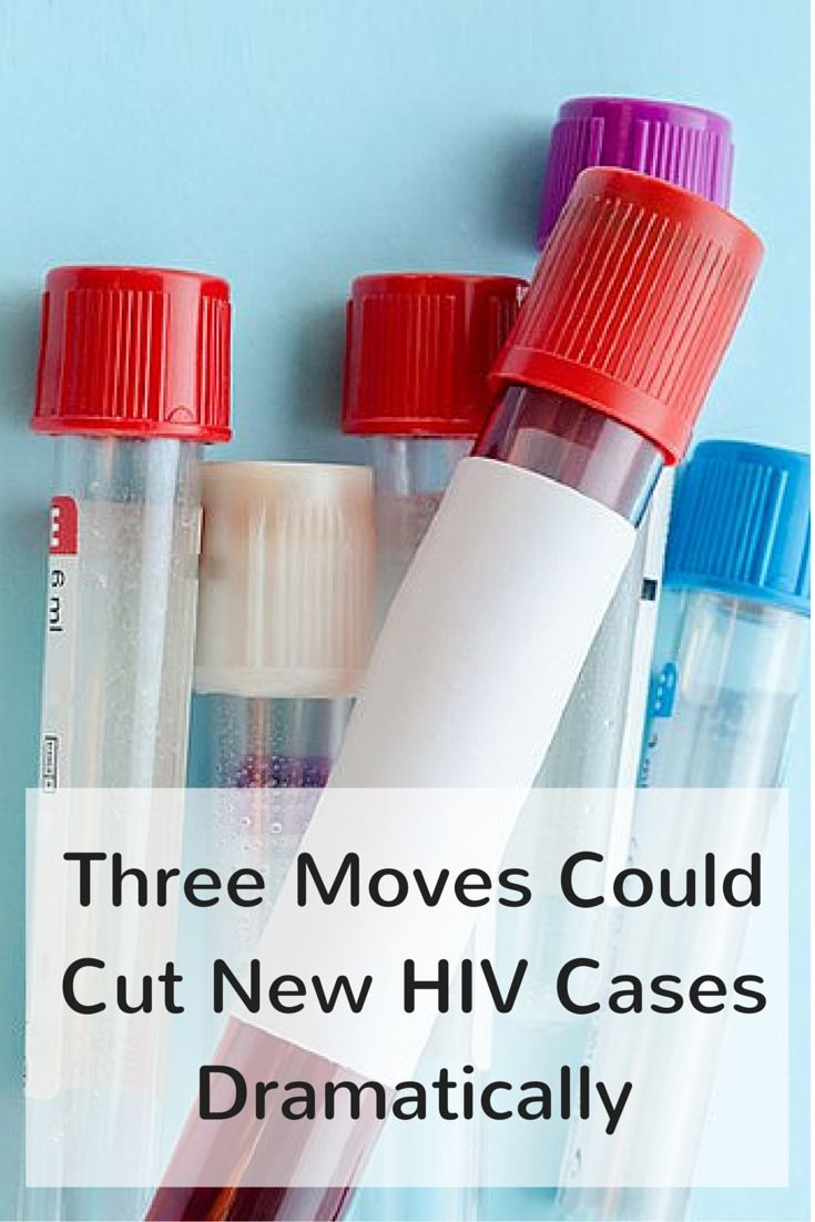 Researchers say testing, treating and providing preventive drugs are crucial. #HIV #sexualhealth #STD #everydayhealth | everydayhealth.com