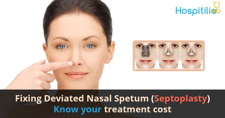 Fixing Deviated Nasal Septum (Septoplasty)...Know your Treatment Cost  Check and compare package price of Septoplasty   Visit: www.hospitilio.com