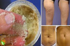 The Most Effective Homemade Scrub Against Cellulite and Stretch Marks!