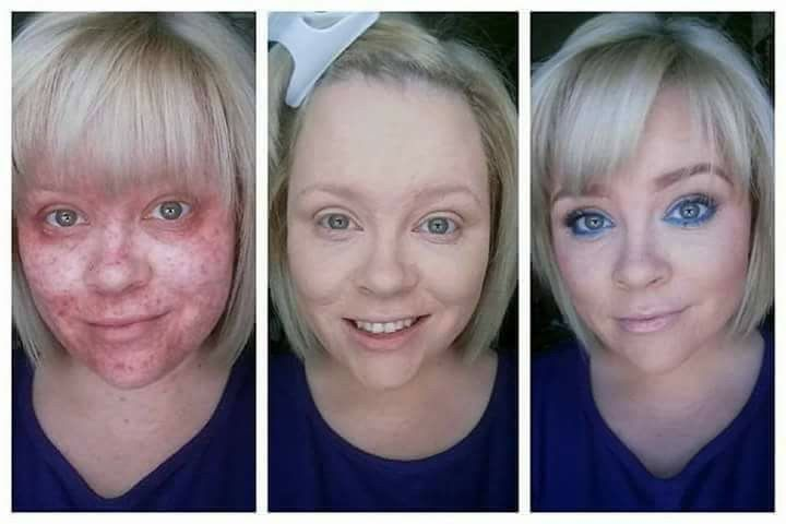 This is a fellow Younique presenter named Jessica Smith. She has a condition called Periorficial Dermatitis. Younique's Touch Liquid Foundation has changed her life! When I say I want to help other women regain their confidence, this is what I am talking about!   She is also wearing the Glisten Up Bundle for this month. Isn't she just Gorgeous?!?!