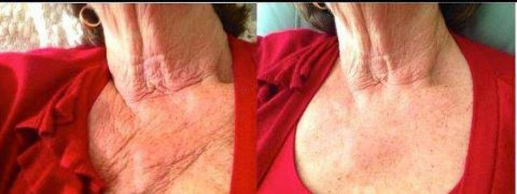 Question: has that expensive skin care product that you've been using brought you results like these, or even close.  In fact do you know what's in that skin care product you're using. Ask me.  I have all the facts and science behind this product.  Or you may visit my websites below  www.lookyouthful.nerium.com  www.lookyouthful.theneriumlook.com  www.lookyouthful.arealbreakthrough.com