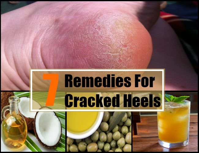 causes of cracked calloused feet treatment