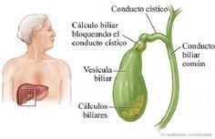Si después de recibir el diagnóstico de cálculos biliares se quiere evitar la cirugía, se puede optar por limpiar la vesícula de forma natural.