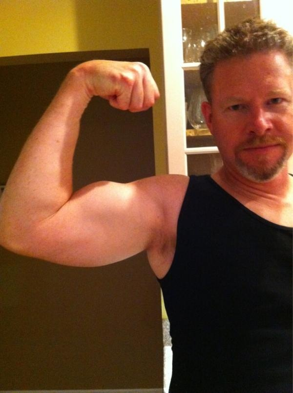 Twitter / emandmichael: @eatcleandiet husband is stg 3 melanoma survivor..he eats clean. This is how his arm is now 2 yrs after lymph surgery