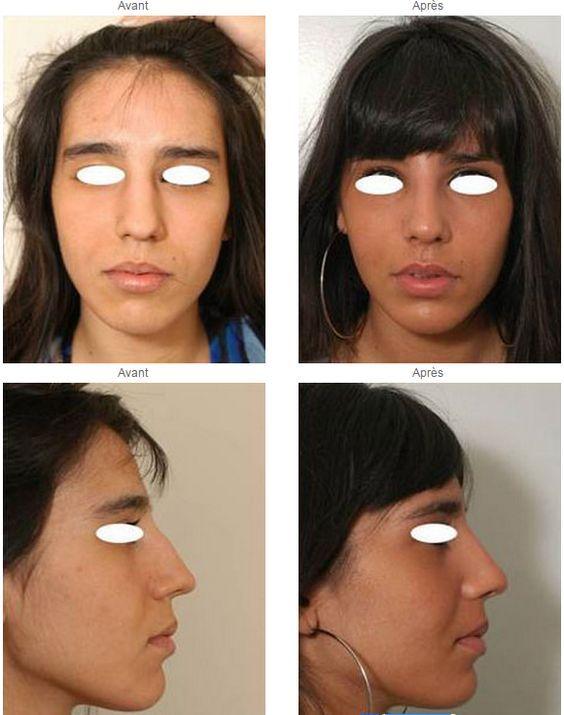 rhinoplastie avant apr s rhinoplastie ou chirurgie du nez pinterest. Black Bedroom Furniture Sets. Home Design Ideas