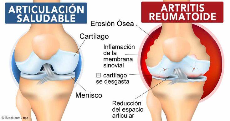 Artritis reumatoide y entrenamiento http://blgs.co/9Zu7a2