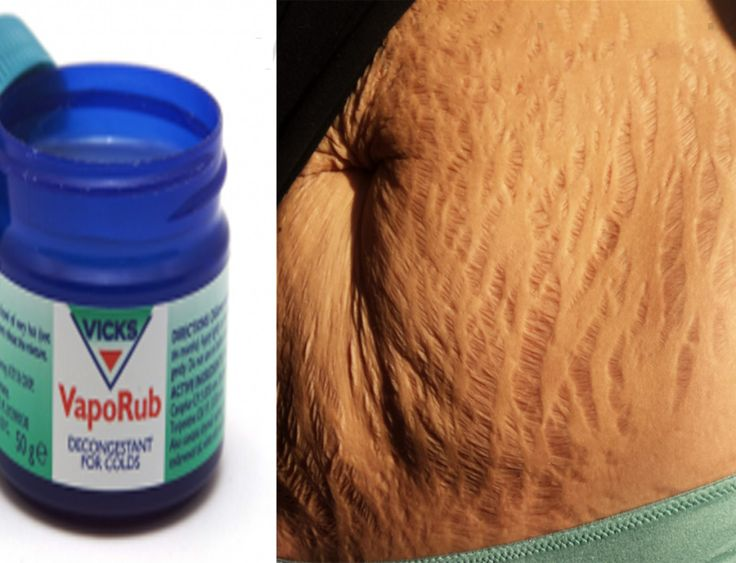 How to Use Vicks Vaporub to Get Rid of the Belly Fat and Cellulite, Eliminate Stretch Marks and No More Bruises!