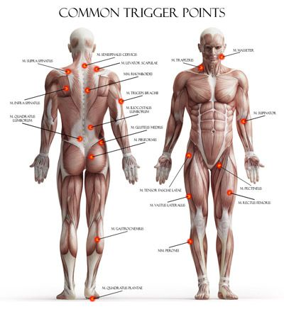 Common locations of Trigger Points in the body.