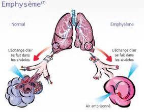 Recherche Comment diagnostiquer un emphyseme pulmonaire. Vues 142721.