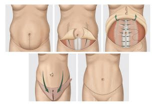 Top 3 Reasons Why You Should Get Tummy Tuck Surgery