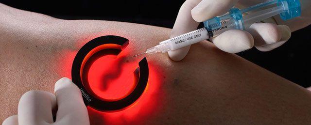 Tratando a Varicose e Derrames