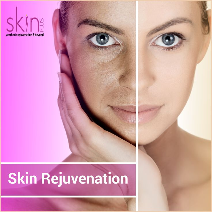 Skin Rejuvenation is a popular #cosmetic procedure that can help #rejuvenate the #skin and reduce the effects of the #sun, #aging, and some #facial skin disorders. #SkinRejuvenation Treatments are safe, effective, and #convenient. Skin Plus clinic has an expertise to rejuvenate your skin to make it look young and glowing.