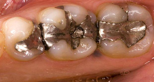 voici-pourquoi-vous-devez-absolument-retirer-vos-amalgames-dentaires