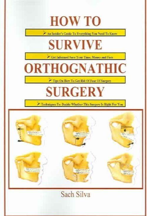 NEW How to Survive Orthognathic Surgery by Sach Silva Paperback Book (English) F