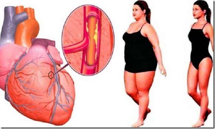 Artérias obstruídas é um grande mal para a saúde do coração.Infelizmente, tem se tornado cada vez mais comum, graças a alimentos gordurosos e a um estilo de vida sedentário.Esses fatores aumentam significativamente os níveis de colesterol no sangue.