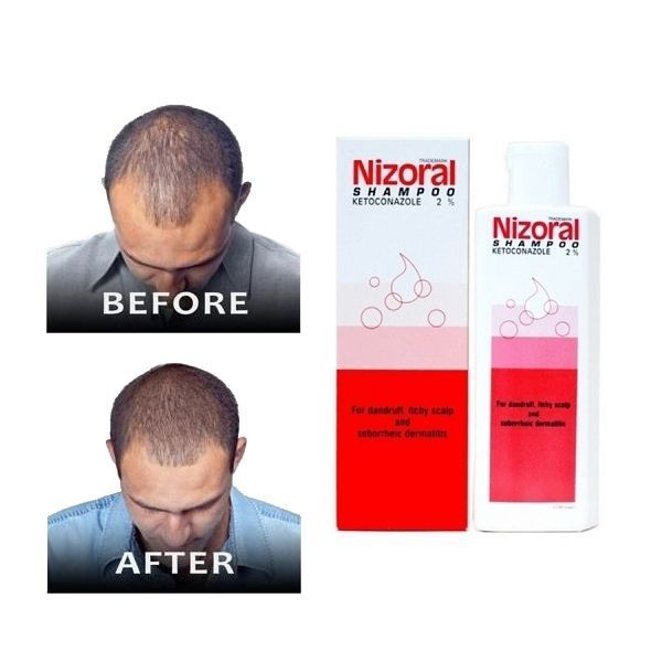 Nizoral anti dandruff hair loss shampoo ketoconazol 2% Regrowth strong 50 ml. #NIZORAL