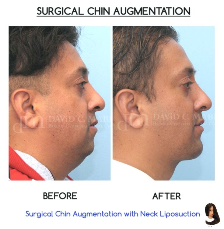 Check out this great #chin #enhancement Before and After by Dr. David C. Mabrie