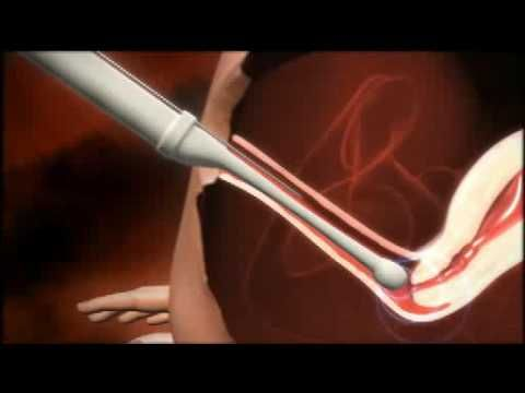 Very nice video on the IVF process from Schering-Plough.