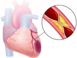 Инфаркт миокарда является патологий, которая, согласно статистическим данным, сопровождается высоким процентом смертности. При инфаркте миокарда приток крови к сердечной мышце уменьшается, это приводит к кислородному голоданию тканей.