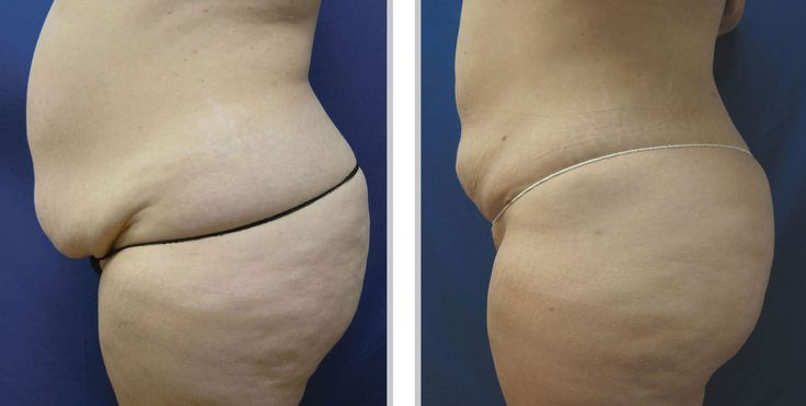 1000 images about before after photos on pinterest for Tattoo removal milwaukee