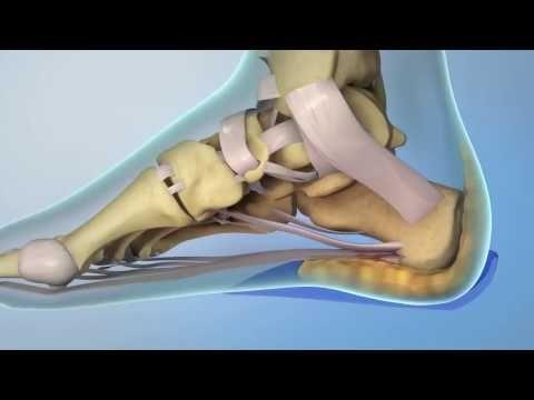 Bolesti chodidiel - bolesti päty - ostrohy | ORIN Slovakia