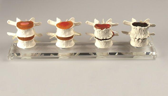 Modelo composto por 4 pares de vértebras e mostra, adicionalmente, a condição normal e três tipos de patologias diferentes. Todas as vértebras são flexíveis o que permite a demonstração dos movimentos.