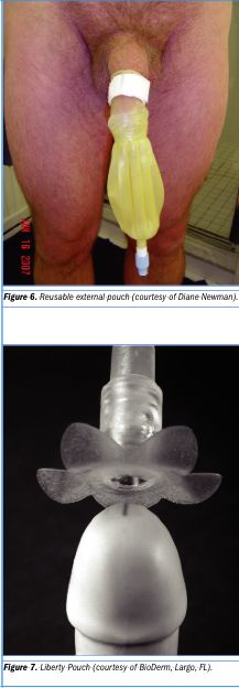 Nonadhesive, reusable ECs also are available and feature an inflatable retention ring or a Velcro® strap to secure the catheter. The latter can be wrapped around the sheath once the sheath is applied. Another product for men who have a retracted penis facilitates attachment to the glans penis with adhesive.
