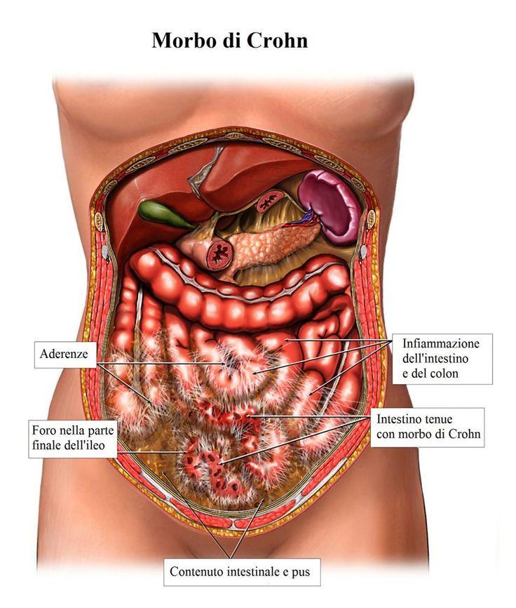 L'infiammazione del colon è conosciuta come colite, cioè una malattia in cui si infiamma la la parete interna dell'intestino crasso. Il colon è la parte dell'intestino che aiuta a eliminare il materiale di scarto dal corpo.