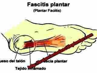 Cuando padecemos de la fascitis plantar muchos de los tratamientos comunes para el dolor de talon de pies se pueden resolver facilmente con los remedios caseros para la fascitis plantar que se pueden hacer en casa y que veremos en este artículo. Que tan común es el dolor de talon de pies (... - http://tratamientofascitisplantar.com/remedios-caseros-para-el-dolor-de-talon-de-pies-fascitis-plantar/