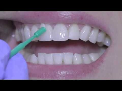 17 Best Images About Dentistry On Pinterest Portal