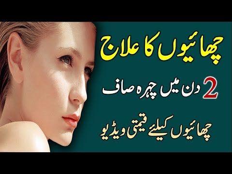 Chaiyon Ka Ilaj In urdu || How to Remove Freckles || Freckles Remedies || In Urdu/Hindi - http://LIFEWAYSVILLAGE.COM/stress-relief/chaiyon-ka-ilaj-in-urdu-how-to-remove-freckles-freckles-remedies-in-urduhindi/