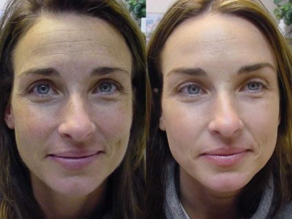 Photofacial can erase skin damage and treat a variety of skin conditions, such as: Broken Capillaries , Sun and Smoke Damage, Veins, Mild Acne Scars , Enlarged Pores , Dull Complexions, Uneven Pigmentation   Pigmented Freckles and Age spots , Red Flushing skin, Rosacea & Redness, Liver Spots , Fine lines & Wrinkles