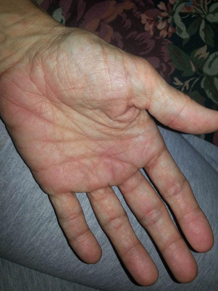 Rheumatoid Arthritis Symptoms......swollen, painful,puffy,  red hands