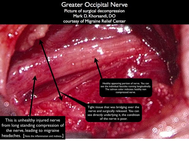 Occipital neuralgia is a cause of migraine headaches due to the greater occipital nerve being compressed.