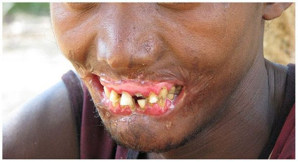 Cancrum oris, also called noma, is a well-known, devastating infectious disease. It's a highly opportunistic disorder. A mix of bacteria work together to destroy the tissue of the face, particularly of the mouth and cheek