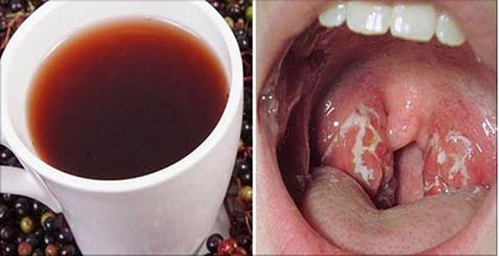 Como Deshacerse de la Infección de Garganta de Forma Natural en Solo 4 Horas.. Intentalo tu también!!.. | TUSALUDESVIDA