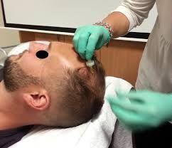 La carboxiterapia mejora la microcirculación capilar.