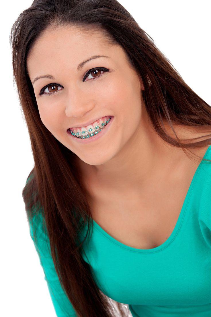 les 25 meilleures id es de la cat gorie appareils orthodontie sur pinterest orthodontie. Black Bedroom Furniture Sets. Home Design Ideas