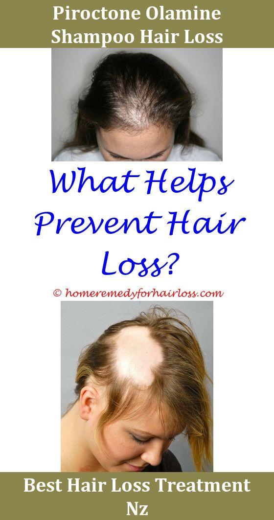 Diet For Hair Loss Hair Loss Hair Loss Treatment And Hair Loss Forum