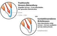 #Keramikschalen #Zahnästhetik #Brite #Veneers #Berlin #Charlottenburg– #Zahnarzt #KU64 für #schöne #Zähne http://www.ku64.de/mehr-als-zaehne/brite-veneers.html