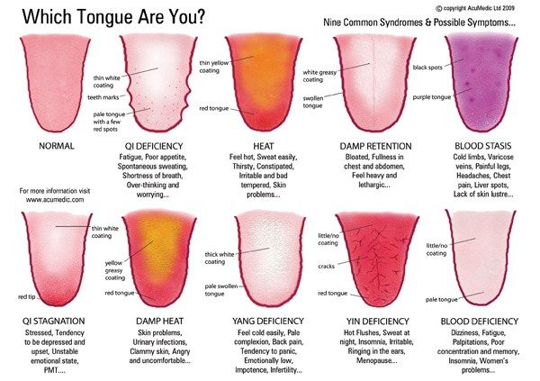 What is Tongue Diagnosis in Chinese Medicine?