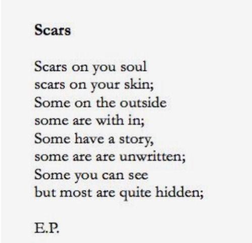 Self Harm Scars Tumblr Quotes | www.pixshark.com - Images ...