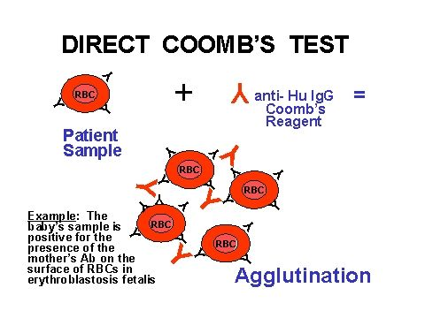 171 best immunohematology images on pinterest lab humor direct coombs test fandeluxe Gallery