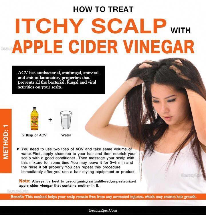 Dandruff Remedy Apple Cider