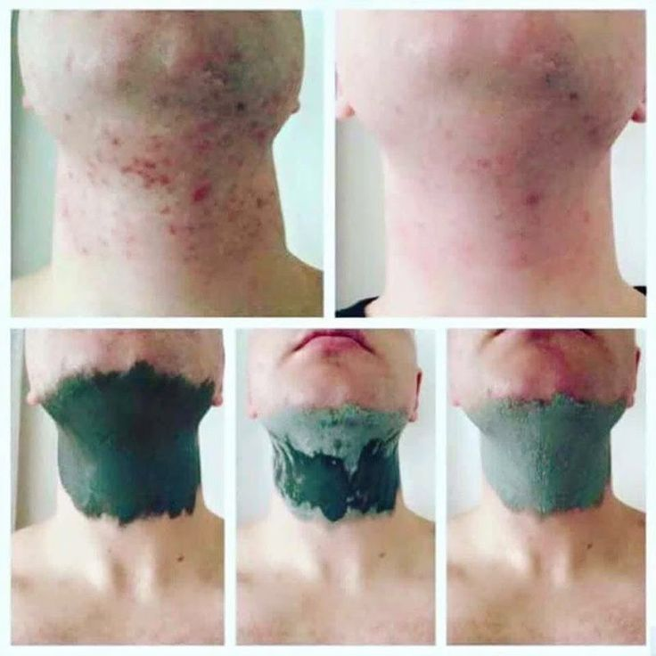 Glacial Marine Mud Mask *Great for blackheads and pores * Helps clear acne and spots *For both men and women  Leaving skin, Smooth. Cleansed and Toned! Inbox for more info!  ‪nataliewood23@yahoo.com